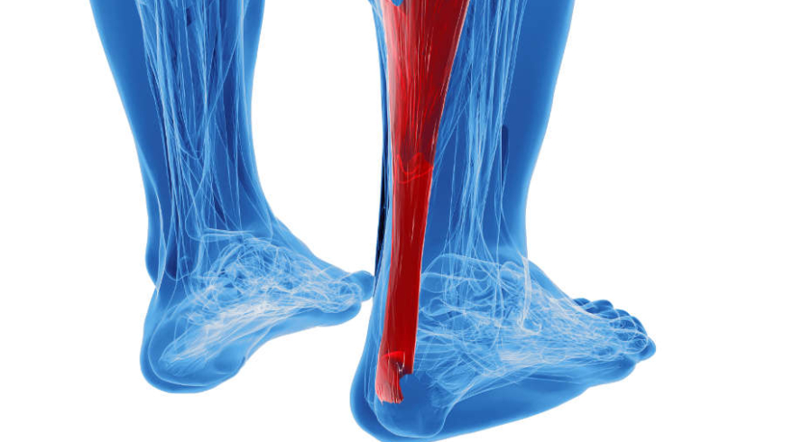 Things to Know About Achilles Tendinitis