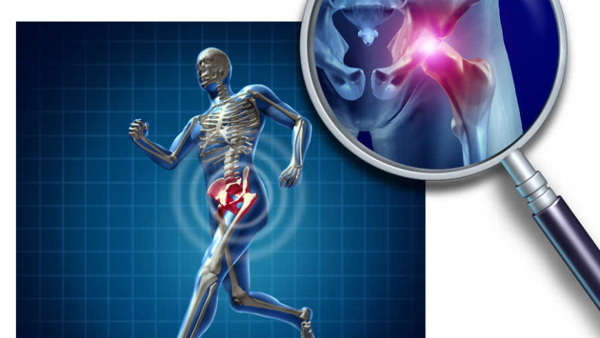 3 Causes of Hip Pain