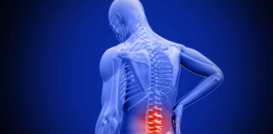Effects of Poor Posture
